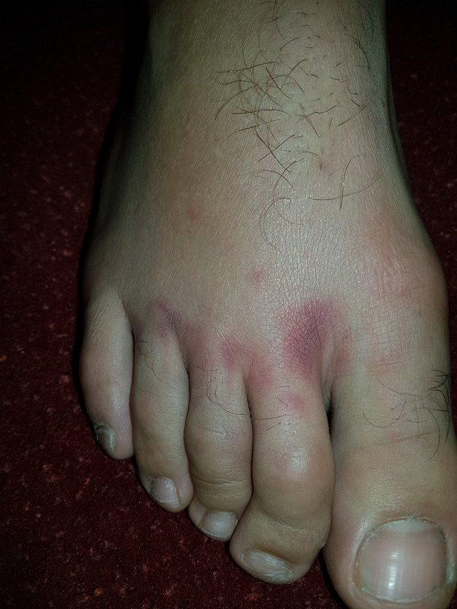 Povreda acina